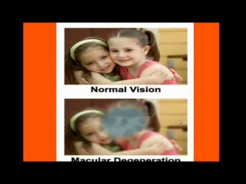 Retinitis Pigmentosa / Macular Degeneration Treatment (Proof) 1