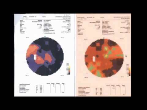 Retinitis Pigmentosa / Macular Degeneration Treatment (Proof) 2