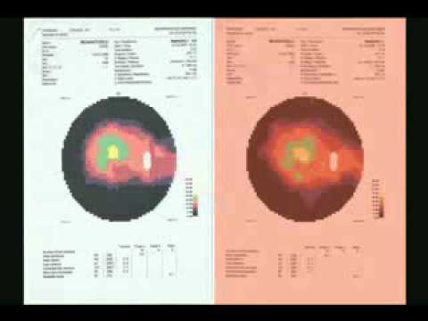 Medical Proof – Medical Evidence – Vision Field Tests Results 2010