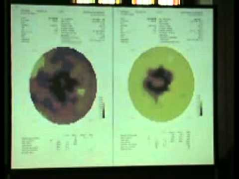 ICMART 2010 World Congress Riga/LATVİA  (Stargardt Disease Treatment)