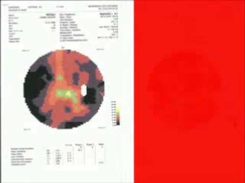 Vision Field Tests 2009 – Retinitis Pigmentosa