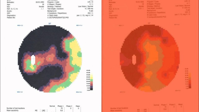 The proof of Retinitis Pigmentosa Treatment – Visionfieldtests