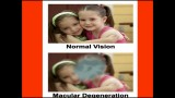 Treatment Of Macular Degeneration 2012