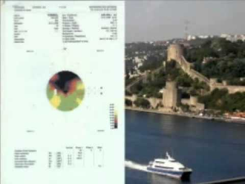 FIRATLI CLINIC ISTANBUL – Stargardt Disease Treatment Riga LATVIA 2010 ICMART WORLD CONGRESS
