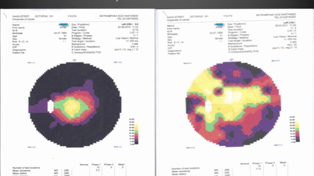 3rd Medical Test Results of Retinitis Pigmentosa Patients Treatment – Firatli Clinic