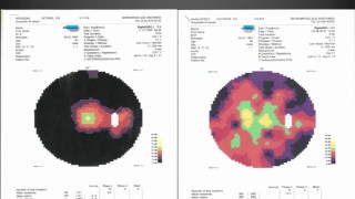 4th Medical Test Results of Retinitis Pigmentosa Patients Treatment – Firatli Clinic