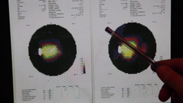 Medical Test Results of Retinitis Pigmentosa Patient